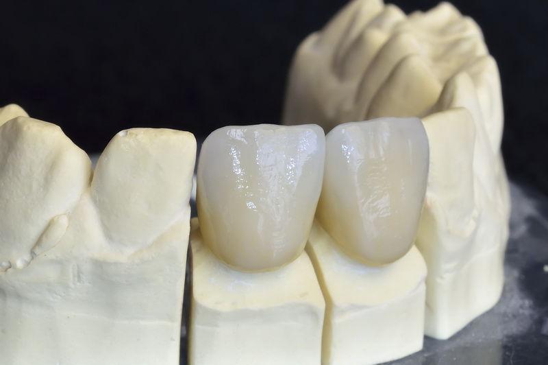 Bridge | Palm Square Dental Care