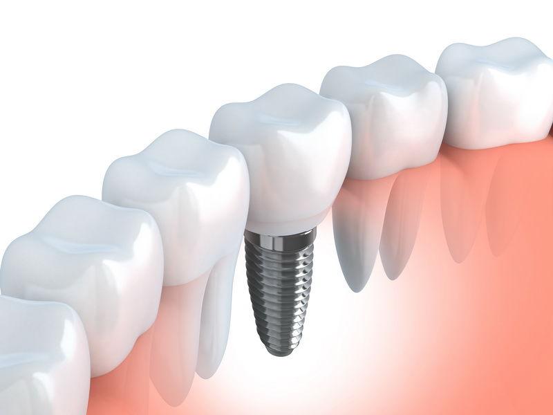 Dental Implants | Palm Square Dental Care