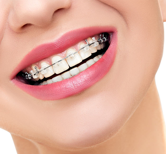 Braces | Palm Square Dental Care