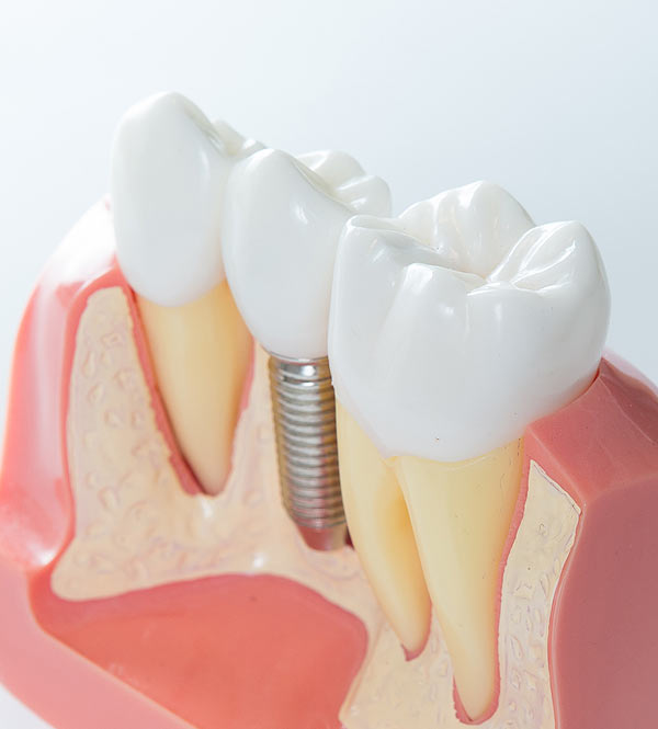 dental implants in bendigo