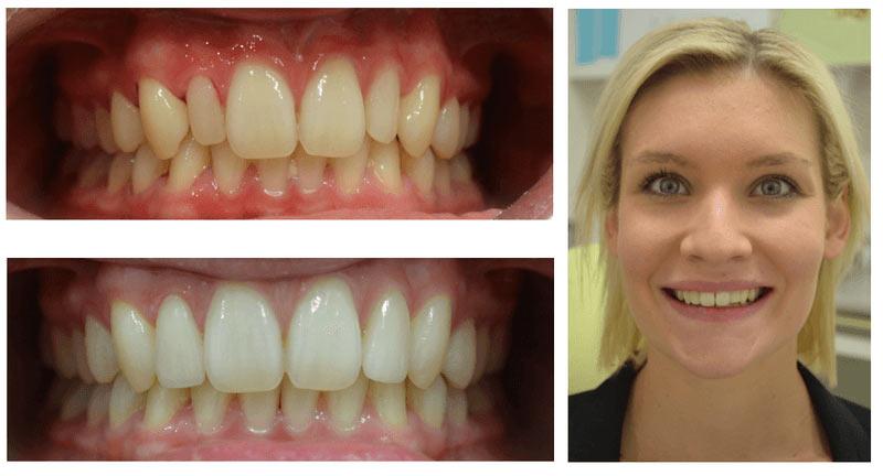 Palm Square Dental Patient