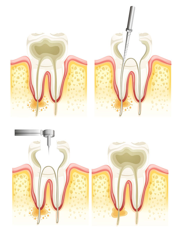Root canal | Palm Square Dental Care