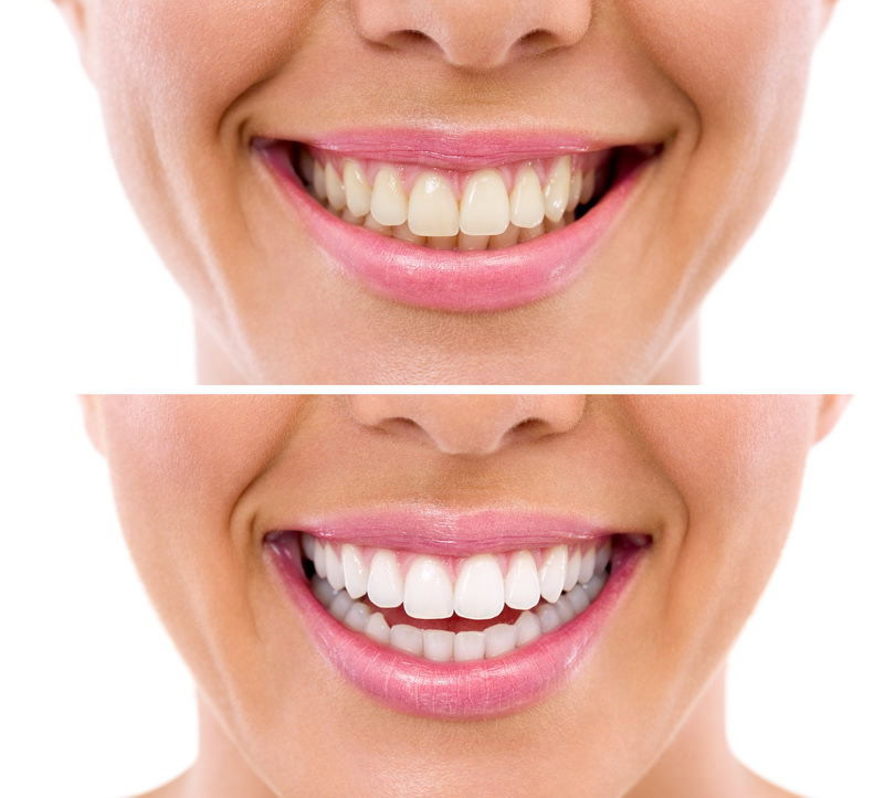Tooth Whitening | Palm Square Dental Care